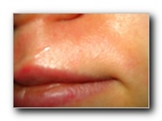 Redness in upper lip area 2.